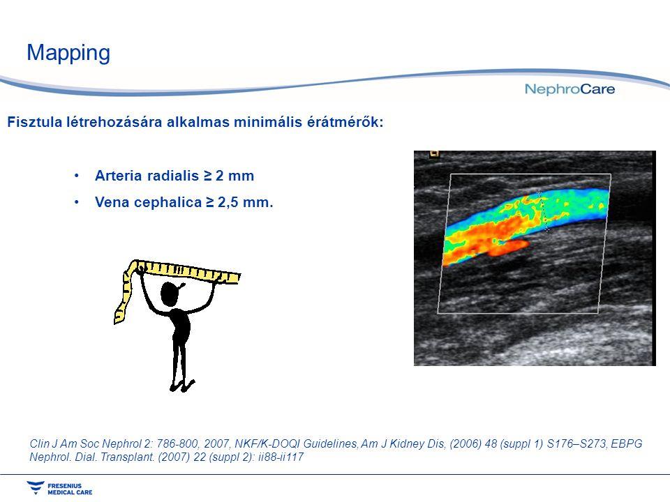 Mapping Fisztula létrehozására alkalmas minimális érátmérők: Arteria radialis ≥ 2 mm Vena cephalica ≥ 2,5 mm. Clin J Am Soc Nephrol 2: 786-800, 2007,