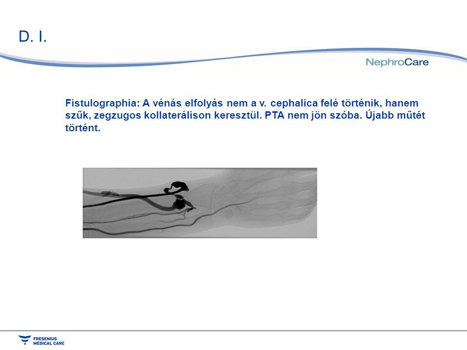 D. I. Fistulographia: A vénás elfolyás nem a v. cephalica felé történik, hanem szűk, zegzugos kollaterálison keresztül. PTA nem jön szóba. Újabb műtét
