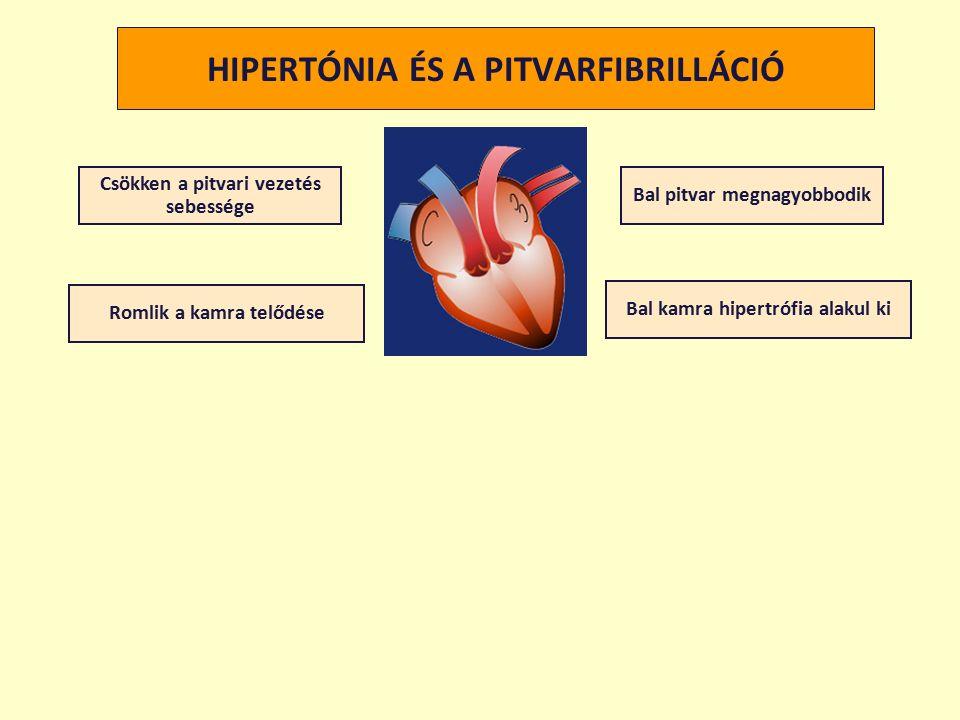 HIPERTÓNIA ÉS A PITVARFIBRILLÁCIÓ Csökken a pitvari vezetés sebessége Romlik a kamra telődése Bal pitvar megnagyobbodik Bal kamra hipertrófia alakul ki