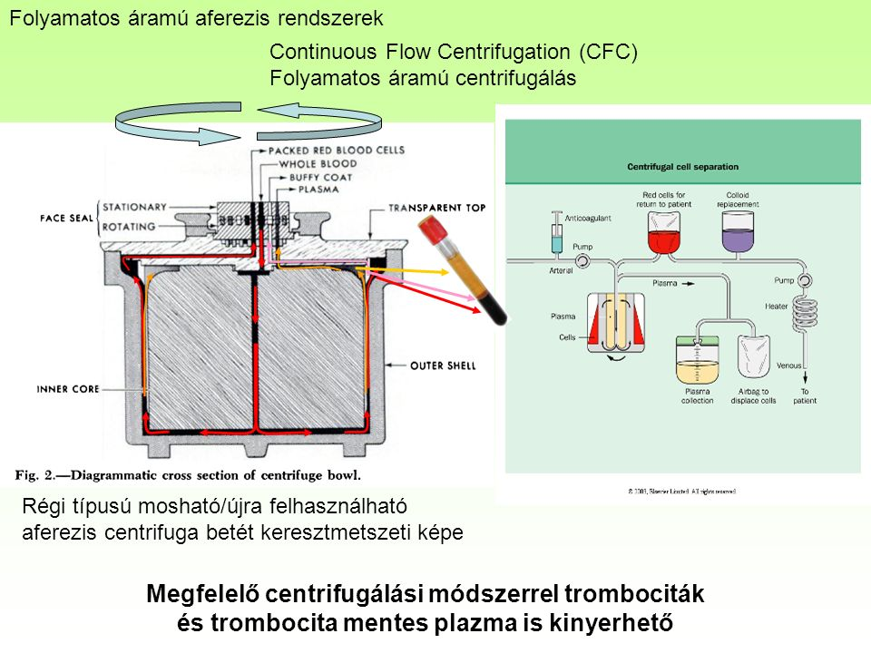 Continuous Flow Centrifugation (CFC) Folyamatos áramú centrifugálás Régi típusú mosható/újra felhasználható aferezis centrifuga betét keresztmetszeti képe Folyamatos áramú aferezis rendszerek Megfelelő centrifugálási módszerrel trombociták és trombocita mentes plazma is kinyerhető