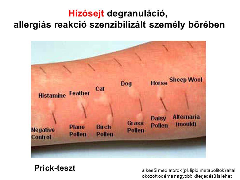 Hízósejt degranuláció, allergiás reakció szenzibilizált személy bőrében Prick-teszt a késői mediátorok (pl.