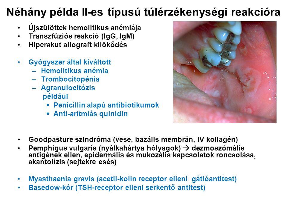Néhány példa II-es típusú túlérzékenységi reakcióra Újszülöttek hemolitikus anémiája Transzfúziós reakció (IgG, IgM) Hiperakut allograft kilökődés Gyógyszer által kiváltott –Hemolitikus anémia –Trombocitopénia –Agranulocitózis például  Penicillin alapú antibiotikumok  Anti-aritmiás quinidin Goodpasture szindróma (vese, bazális membrán, IV kollagén) Pemphigus vulgaris (nyálkahártya hólyagok)  dezmoszómális antigének ellen, epidermális és mukozális kapcsolatok roncsolása, akantolízis (sejtekre esés) Myasthaenia gravis (acetil-kolin receptor elleni gátlóantitest) Basedow-kór (TSH-receptor elleni serkentő antitest)