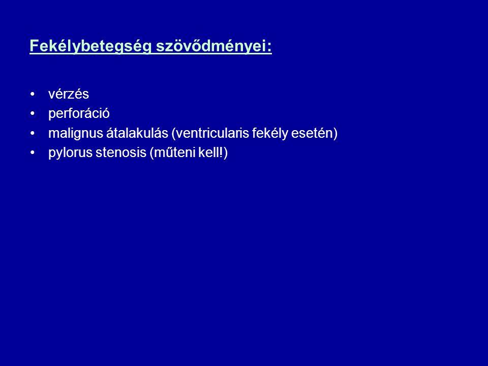 Fekélybetegség szövődményei: vérzés perforáció malignus átalakulás (ventricularis fekély esetén) pylorus stenosis (műteni kell!)