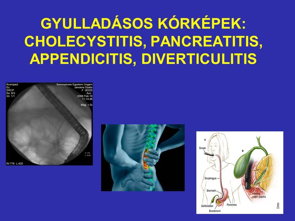 Az epebetegségek felosztása Epehólyag és epeúti kövesség Cholecystitis és cholangitis