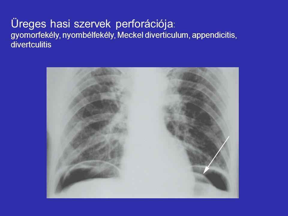 Üreges hasi szervek perforációja : gyomorfekély, nyombélfekély, Meckel diverticulum, appendicitis, divertculitis
