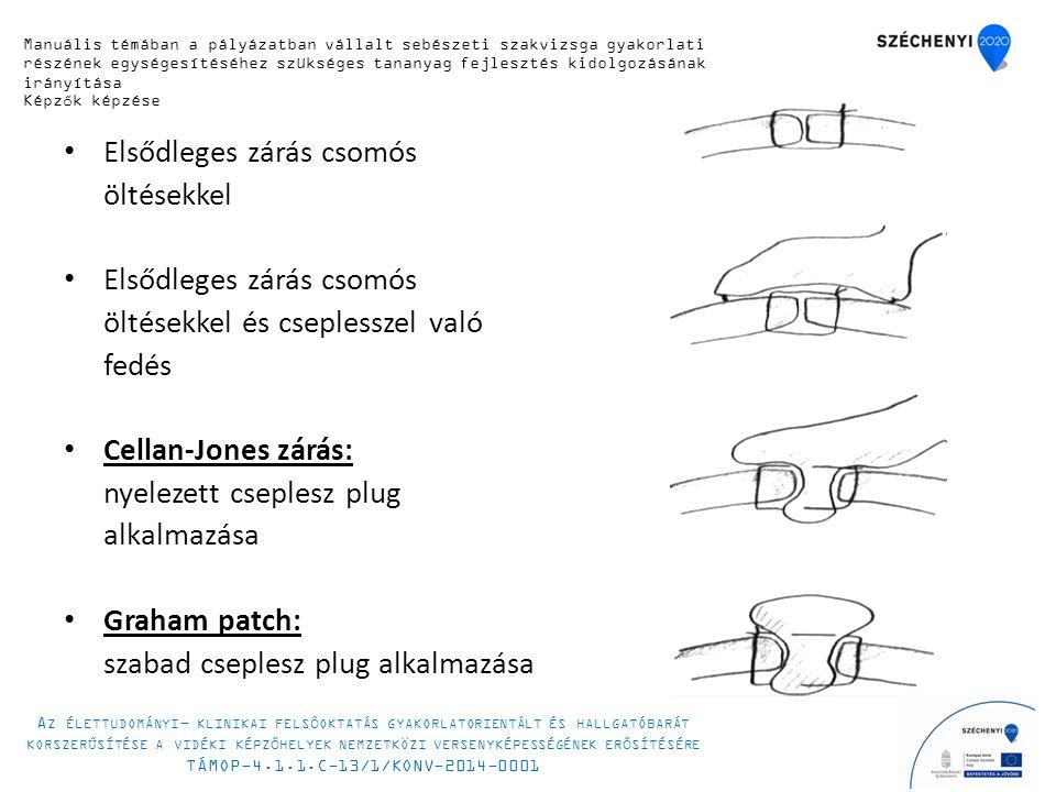 Elsődleges zárás csomós öltésekkel Elsődleges zárás csomós öltésekkel és cseplesszel való fedés Cellan-Jones zárás: nyelezett cseplesz plug alkalmazása Graham patch: szabad cseplesz plug alkalmazása Manuális témában a pályázatban vállalt sebészeti szakvizsga gyakorlati részének egységesítéséhez szükséges tananyag fejlesztés kidolgozásának irányítása Képzők képzése A Z ÉLETTUDOMÁNYI - KLINIKAI FELSŐOKTATÁS GYAKORLATORIENTÁLT ÉS HALLGATÓBARÁT KORSZERŰSÍTÉSE A VIDÉKI KÉPZŐHELYEK NEMZETKÖZI VERSENYKÉPESSÉGÉNEK ERŐSÍTÉSÉRE TÁMOP-4.1.1.C-13/1/KONV-2014-0001
