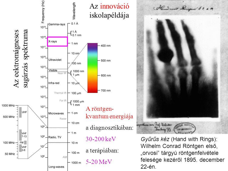 """Gyűrűs kéz (Hand with Rings): Wilhelm Conrad Röntgen első, """"orvosi tárgyú röntgenfelvétele felesége kezéről 1895."""