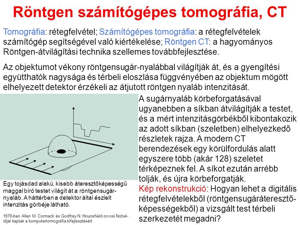 Röntgen számítógépes tomográfia, CT A sugárnyaláb körbeforgatásával ugyanebben a síkban átvilágítják a testet, és a mért intenzitásgörbékből kibontakozik az adott síkban (szeletben) elhelyezkedő részletek rajza.