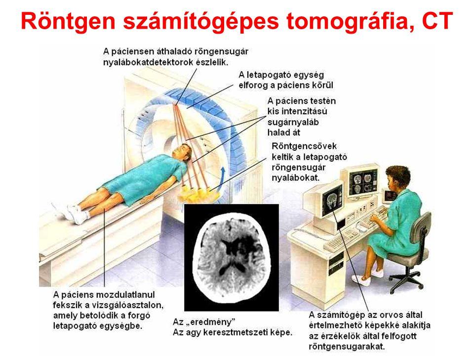Röntgen számítógépes tomográfia, CT