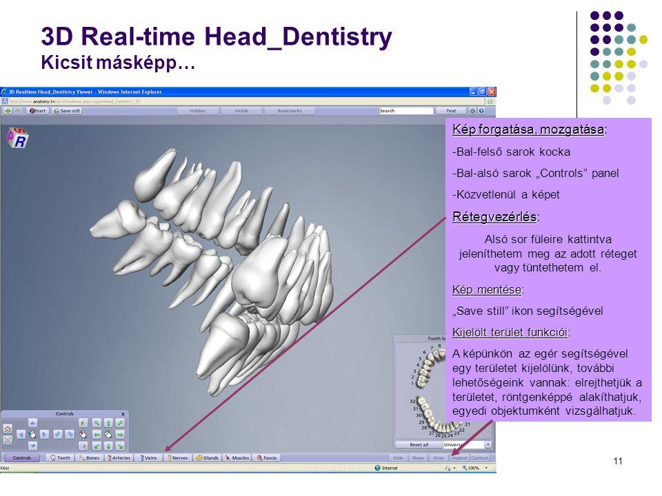 """11 3D Real-time Head_Dentistry Kicsit másképp… Kép forgatása, mozgatása Kép forgatása, mozgatása: -Bal-felső sarok kocka -Bal-alsó sarok """"Controls panel -Közvetlenül a képet Rétegvezérlés Rétegvezérlés: Alsó sor füleire kattintva jeleníthetem meg az adott réteget vagy tüntethetem el."""