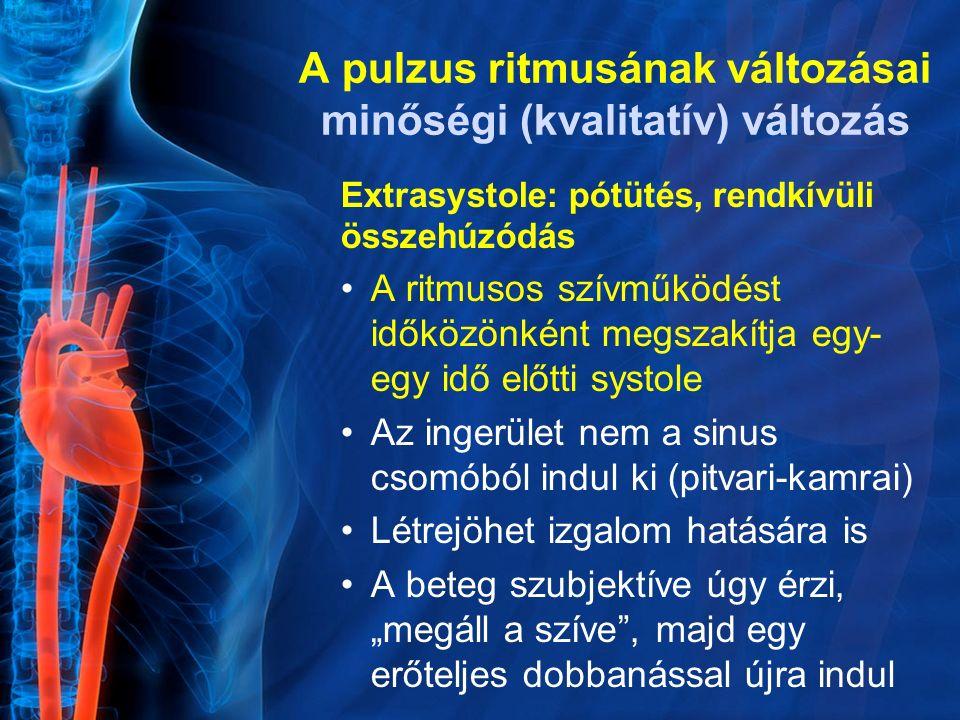 Extrasystole: pótütés, rendkívüli összehúzódás A ritmusos szívműködést időközönként megszakítja egy- egy idő előtti systole Az ingerület nem a sinus c