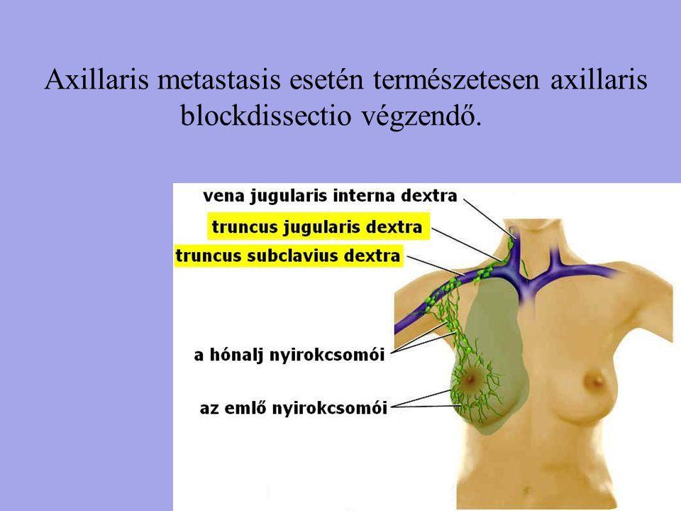 Axillaris metastasis esetén természetesen axillaris blockdissectio végzendő.