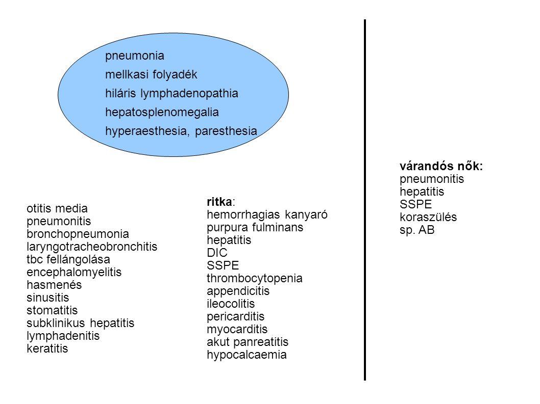 pneumonia mellkasi folyadék hiláris lymphadenopathia hepatosplenomegalia hyperaesthesia, paresthesia otitis media pneumonitis bronchopneumonia laryngotracheobronchitis tbc fellángolása encephalomyelitis hasmenés sinusitis stomatitis subklinikus hepatitis lymphadenitis keratitis ritka: hemorrhagias kanyaró purpura fulminans hepatitis DIC SSPE thrombocytopenia appendicitis ileocolitis pericarditis myocarditis akut panreatitis hypocalcaemia várandós nők: pneumonitis hepatitis SSPE koraszülés sp.