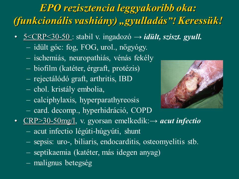 """EPO rezisztencia leggyakoribb oka: (funkcionális vashiány) """"gyulladás """"! Keressük! 5<CRP<30-505<CRP<30-50 : stabil v. ingadozó → idült, sziszt. gyull."""
