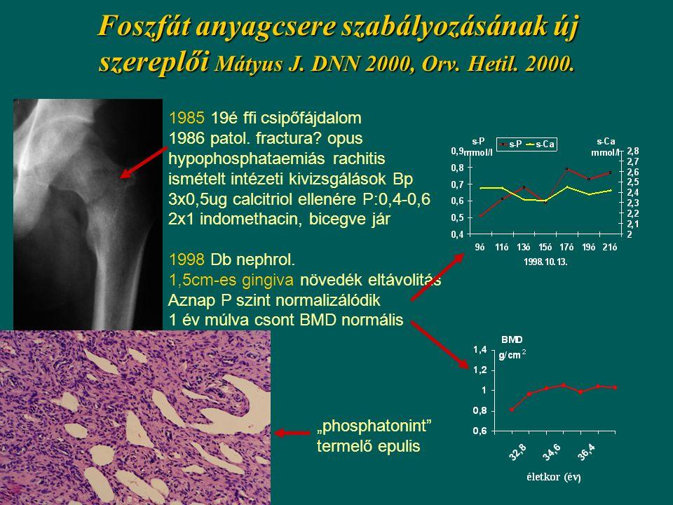 Foszfát anyagcsere szabályozásának új szereplői Mátyus J. DNN 2000, Orv. Hetil. 2000. 1985 19é ffi csipőfájdalom 1986 patol. fractura? opus hypophosph