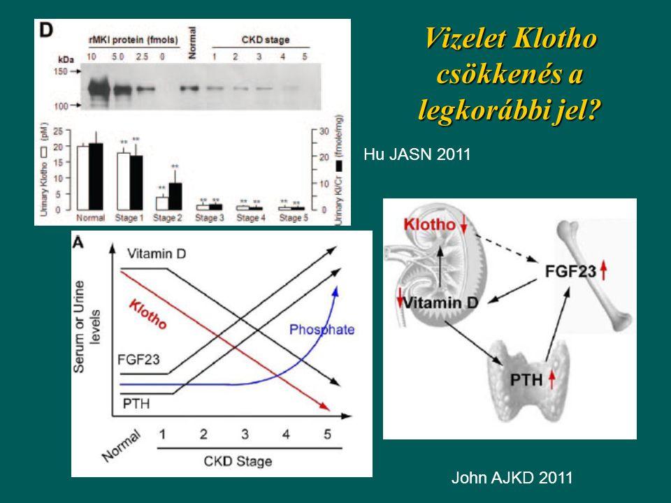 Vizelet Klotho csökkenés a legkorábbi jel? Hu JASN 2011 John AJKD 2011