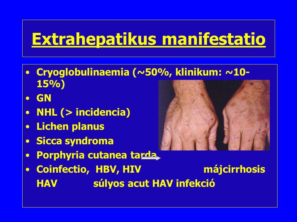 A krónikus hepatitis C vírus infekció jelei Általános tünetek (anorexia, testsúlycsökkenés, fáradékonyság) + hepatomegalia Transaminase értékek 6-12 hónap elteltével is kórosan emelkedettek (>2 norm.) Pozitív anti-HCV Ig Pozitív HCV-RNS (PCR, Quantiplex) Májszövettan –(HAI) –D/D