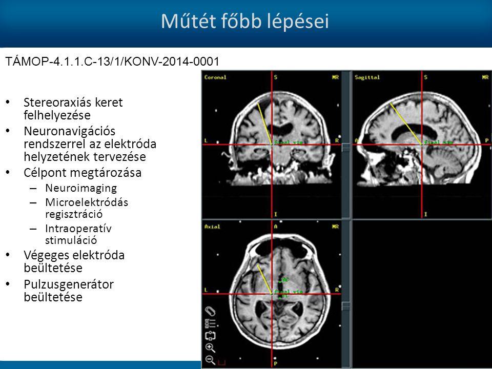 Műtét főbb lépései Stereoraxiás keret felhelyezése Neuronavigációs rendszerrel az elektróda helyzetének tervezése Célpont megtározása – Neuroimaging – Microelektródás regisztráció – Intraoperatív stimuláció Végeges elektróda beültetése Pulzusgenerátor beültetése TÁMOP-4.1.1.C-13/1/KONV-2014-0001