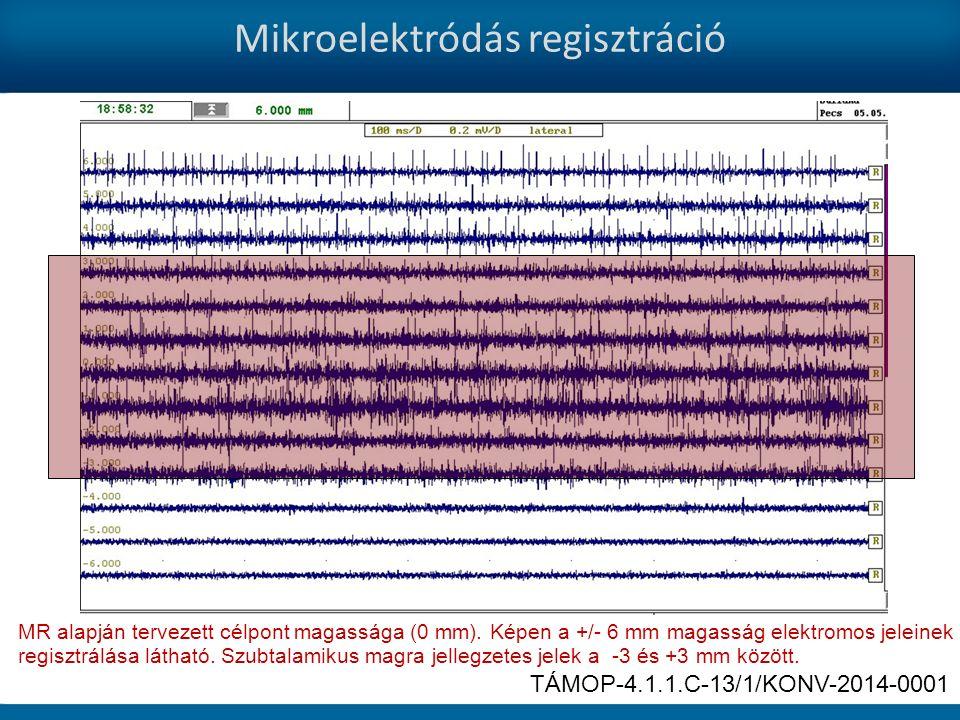 Mikroelektródás regisztráció MR alapján tervezett célpont magassága (0 mm).