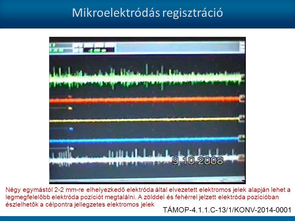 Mikroelektródás regisztráció Négy egymástól 2-2 mm-re elhelyezkedő elektróda által elvezetett elektromos jelek alapján lehet a legmegfelelőbb elektróda pozíciót megtalálni.