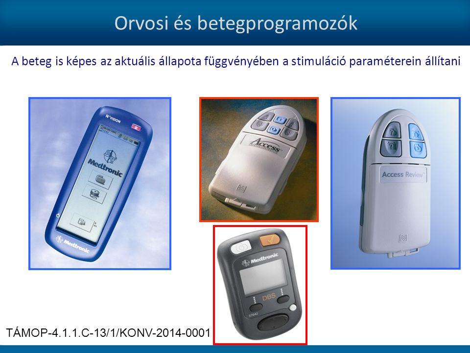 Orvosi és betegprogramozók A beteg is képes az aktuális állapota függvényében a stimuláció paraméterein állítani TÁMOP-4.1.1.C-13/1/KONV-2014-0001