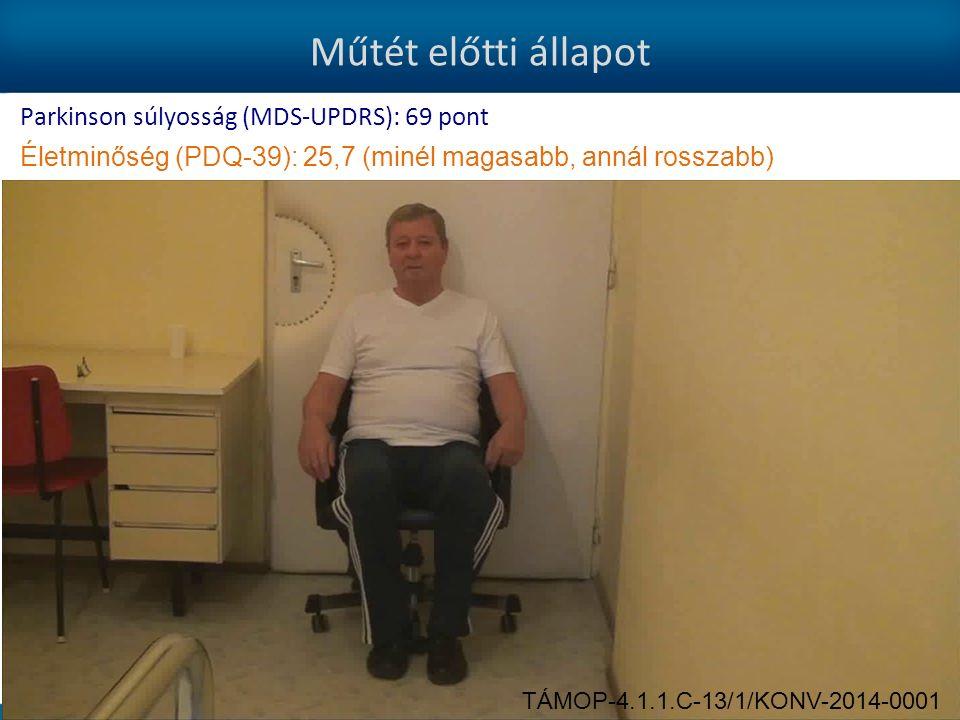 Műtét előtti állapot Parkinson súlyosság (MDS-UPDRS): 69 pont Életminőség (PDQ-39): 25,7 (minél magasabb, annál rosszabb) TÁMOP-4.1.1.C-13/1/KONV-2014-0001