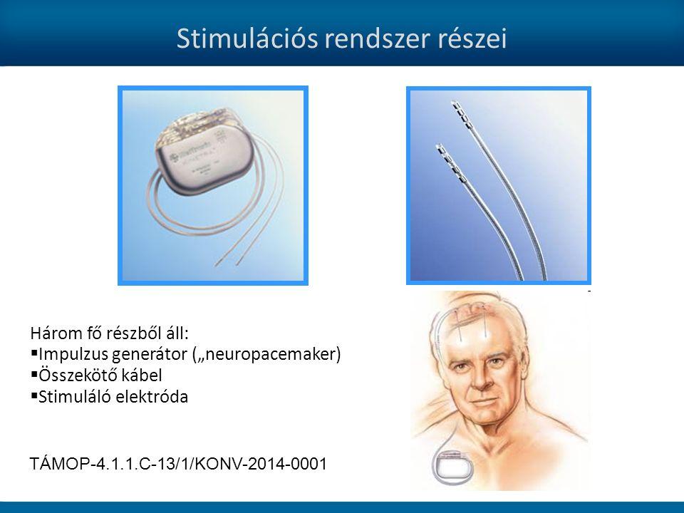"""Stimulációs rendszer részei Három fő részből áll:  Impulzus generátor (""""neuropacemaker)  Összekötő kábel  Stimuláló elektróda TÁMOP-4.1.1.C-13/1/KONV-2014-0001"""