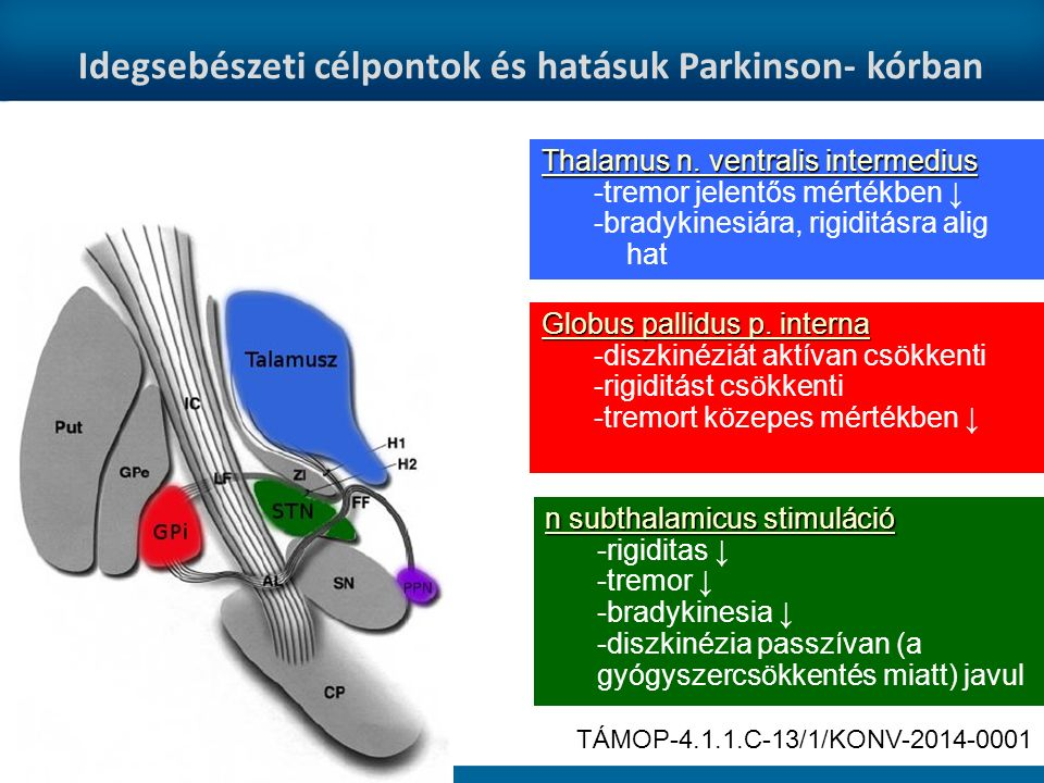 Idegsebészeti célpontok és hatásuk Parkinson- kórban Globus pallidus p.