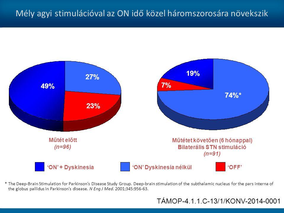 Mély agyi stimulációval az ON idő közel háromszorosára növekszik 'ON' Dyskinesia nélkül'ON' + Dyskinesia'OFF' Műtét előtt (n=96) 49% 27% 23% Műtétet követően (6 hónappal) Bilaterális STN stimuláció (n=91) 74%* 19% 7% * The Deep-Brain Stimulation for Parkinson's Disease Study Group.