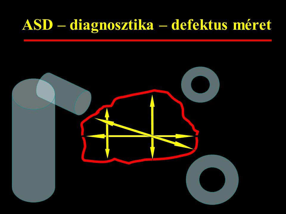 ASD zárás a felnőttkorban Kinek? Mikor? Hogyan? ASD méret - megfontolások 6 – 35 mm (átl. 15 mm) Felnőtt 10 – 35 mm (átl. 22 mm)