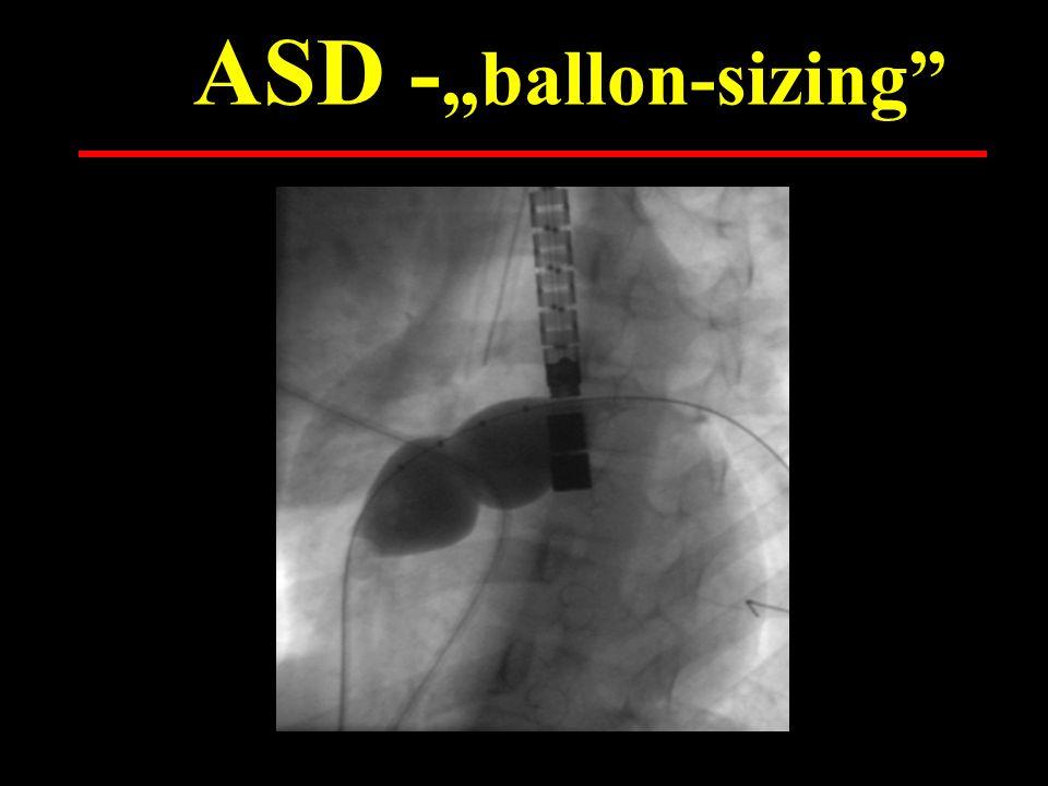 ASD – diagnosztika - peremek aorta mitralis Venae cavae Vv.pulmonales ASD