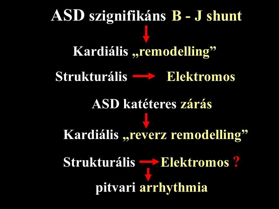 ASD zárás a felnőttkorban Kinek? Mikor? Hogyan? Nyitott kérdések – pitvari flatter / fibrilláció – pulmonalis hypertonia – thrombus képződés – emboliz