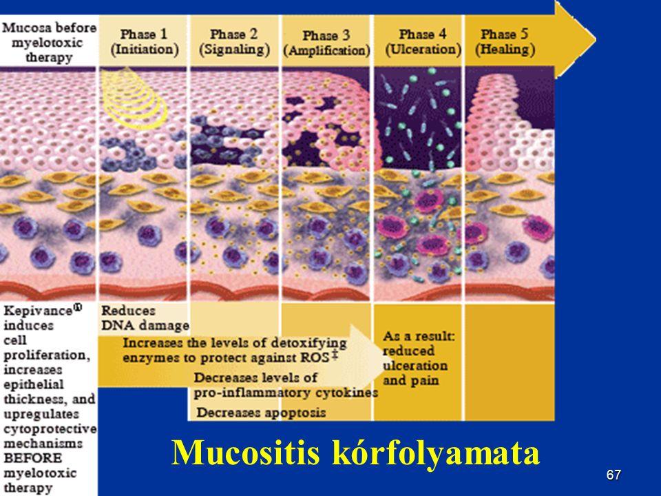 67 Mucositis kórfolyamata