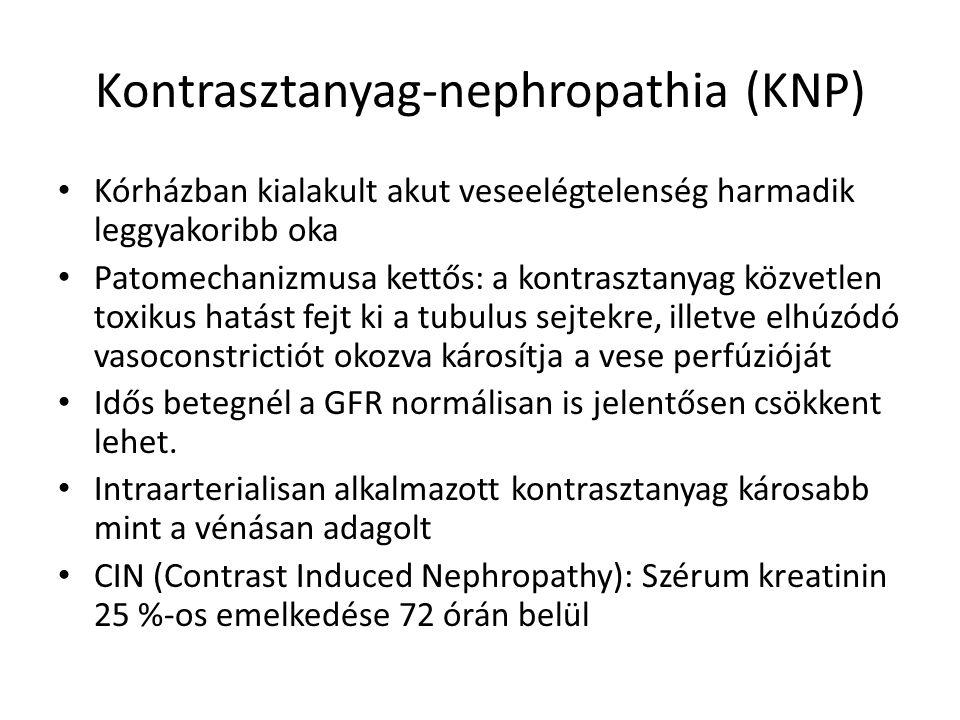 Kontrasztanyag-nephropathia (KNP) Kórházban kialakult akut veseelégtelenség harmadik leggyakoribb oka Patomechanizmusa kettős: a kontrasztanyag közvetlen toxikus hatást fejt ki a tubulus sejtekre, illetve elhúzódó vasoconstrictiót okozva károsítja a vese perfúzióját Idős betegnél a GFR normálisan is jelentősen csökkent lehet.