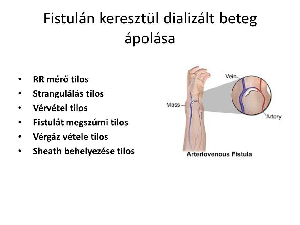 Fistulán keresztül dializált beteg ápolása RR mérő tilos Strangulálás tilos Vérvétel tilos Fistulát megszúrni tilos Vérgáz vétele tilos Sheath behelye