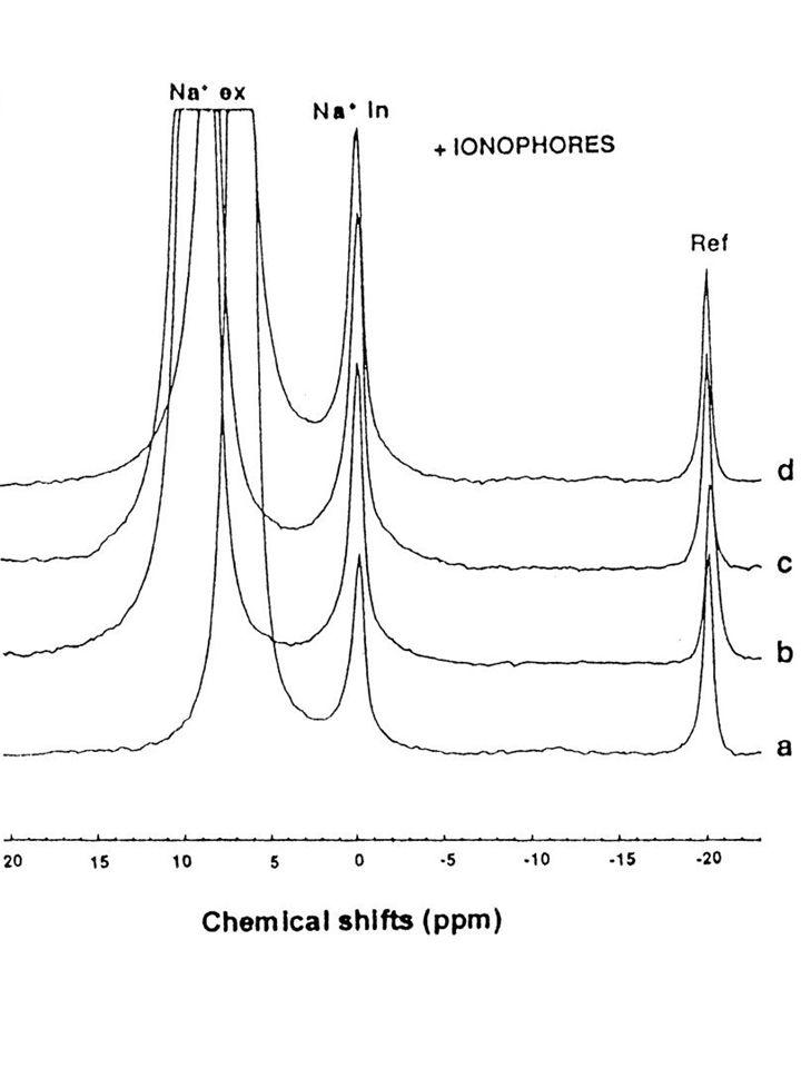 Heteronukleáris NMR: 31 P