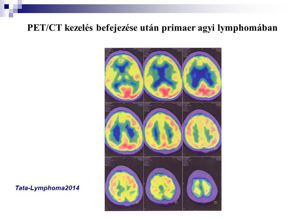 PET/CT kezelés befejezése után primaer agyi lymphomában Tata-Lymphoma2014