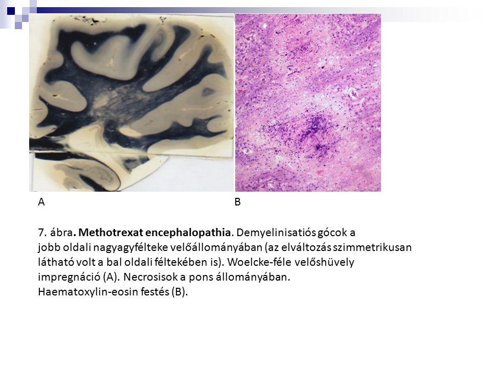 7. ábra. Methotrexat encephalopathia. Demyelinisatiós gócok a jobb oldali nagyagyfélteke velőállományában (az elváltozás szimmetrikusan látható volt a