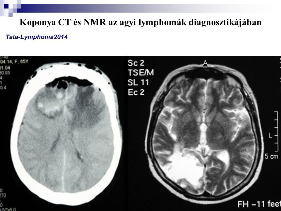 Koponya CT és NMR az agyi lymphomák diagnosztikájában Tata-Lymphoma2014