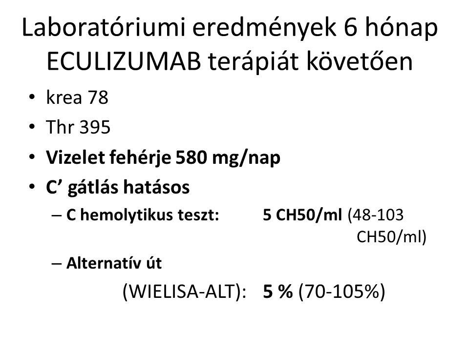 Laboratóriumi eredmények 6 hónap ECULIZUMAB terápiát követően krea 78 Thr 395 Vizelet fehérje 580 mg/nap C' gátlás hatásos – C hemolytikus teszt: 5 CH50/ml (48-103 CH50/ml) – Alternatív út (WIELISA-ALT): 5 % (70-105%)