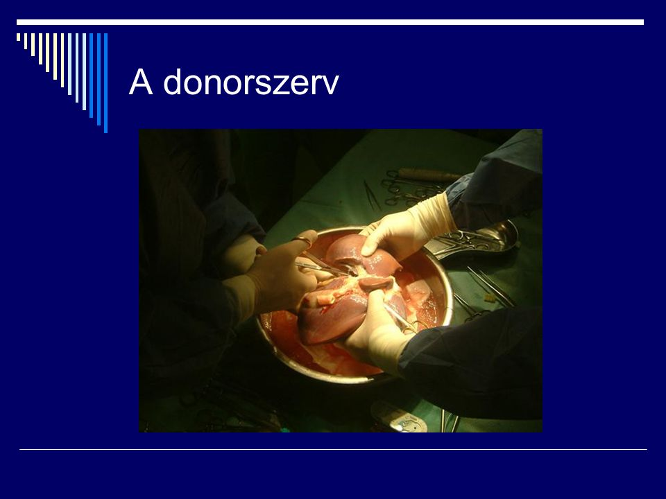 A donorszerv