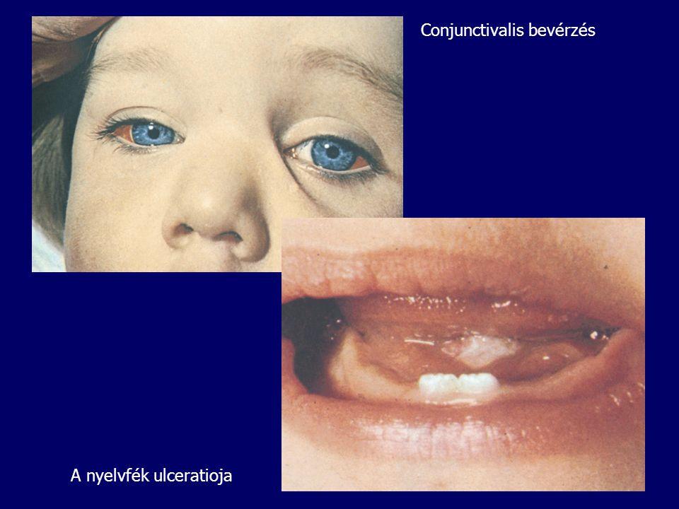 Conjunctivalis bevérzés A nyelvfék ulceratioja