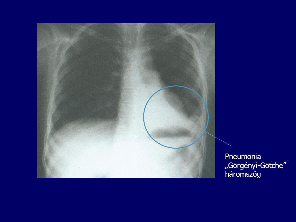 """Pneumonia """"Görgényi-Götche"""" háromszög"""
