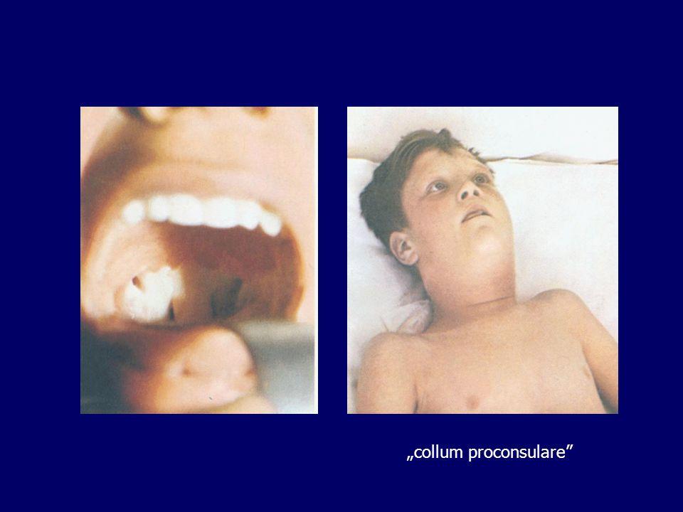 """""""collum proconsulare"""""""