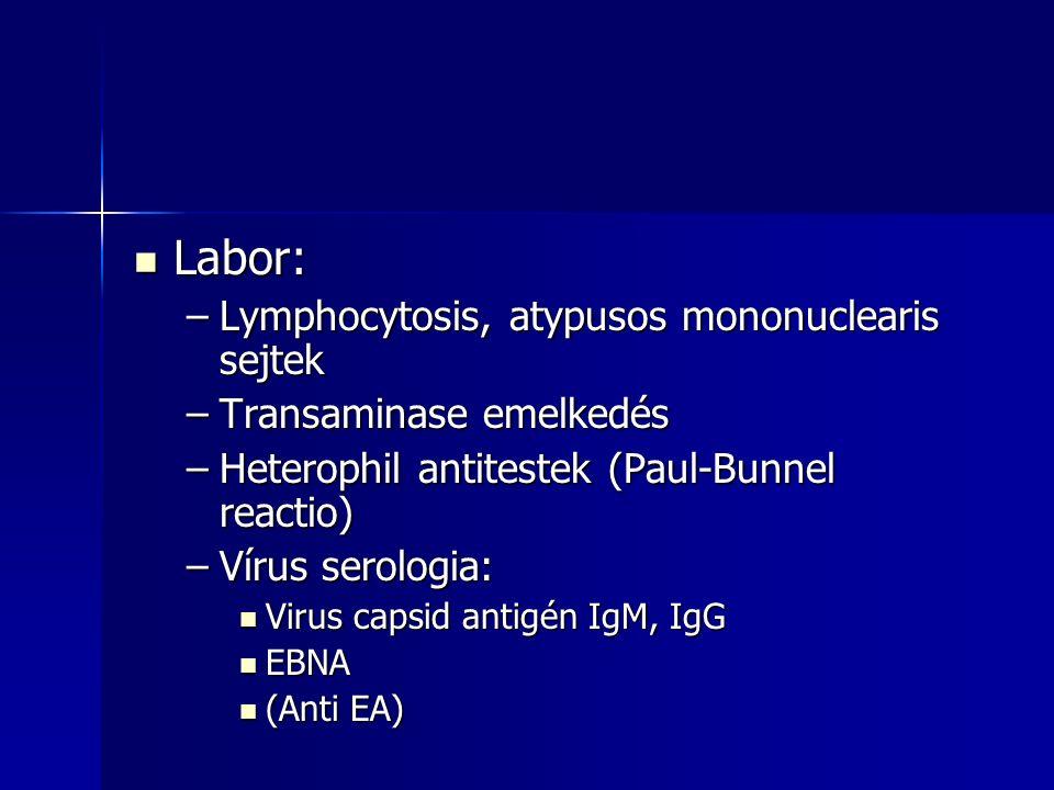 Labor: Labor: –Lymphocytosis, atypusos mononuclearis sejtek –Transaminase emelkedés –Heterophil antitestek (Paul-Bunnel reactio) –Vírus serologia: Vir