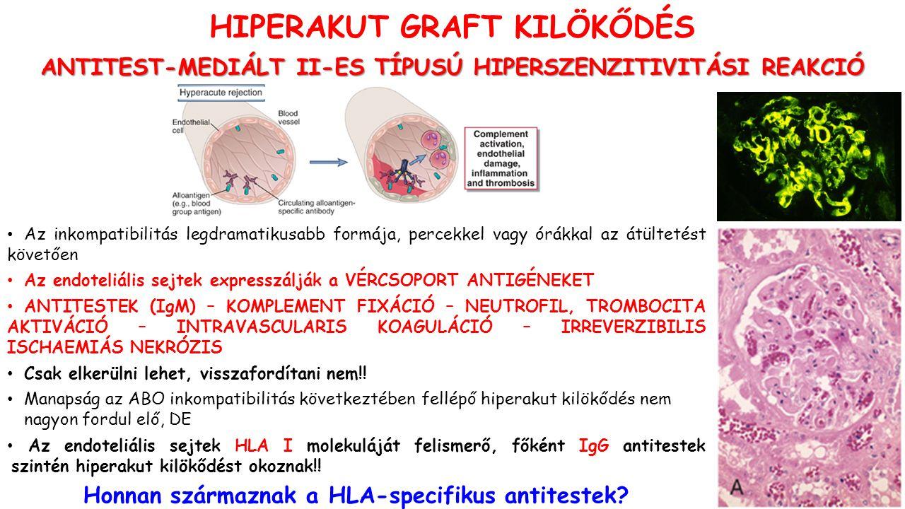 HIPERAKUT GRAFT KILÖKŐDÉS ANTITEST-MEDIÁLT II-ES TÍPUSÚ HIPERSZENZITIVITÁSI REAKCIÓ Az inkompatibilitás legdramatikusabb formája, percekkel vagy órákkal az átültetést követően Az endoteliális sejtek expresszálják a VÉRCSOPORT ANTIGÉNEKET ANTITESTEK (IgM) – KOMPLEMENT FIXÁCIÓ – NEUTROFIL, TROMBOCITA AKTIVÁCIÓ – INTRAVASCULARIS KOAGULÁCIÓ – IRREVERZIBILIS ISCHAEMIÁS NEKRÓZIS Csak elkerülni lehet, visszafordítani nem!.