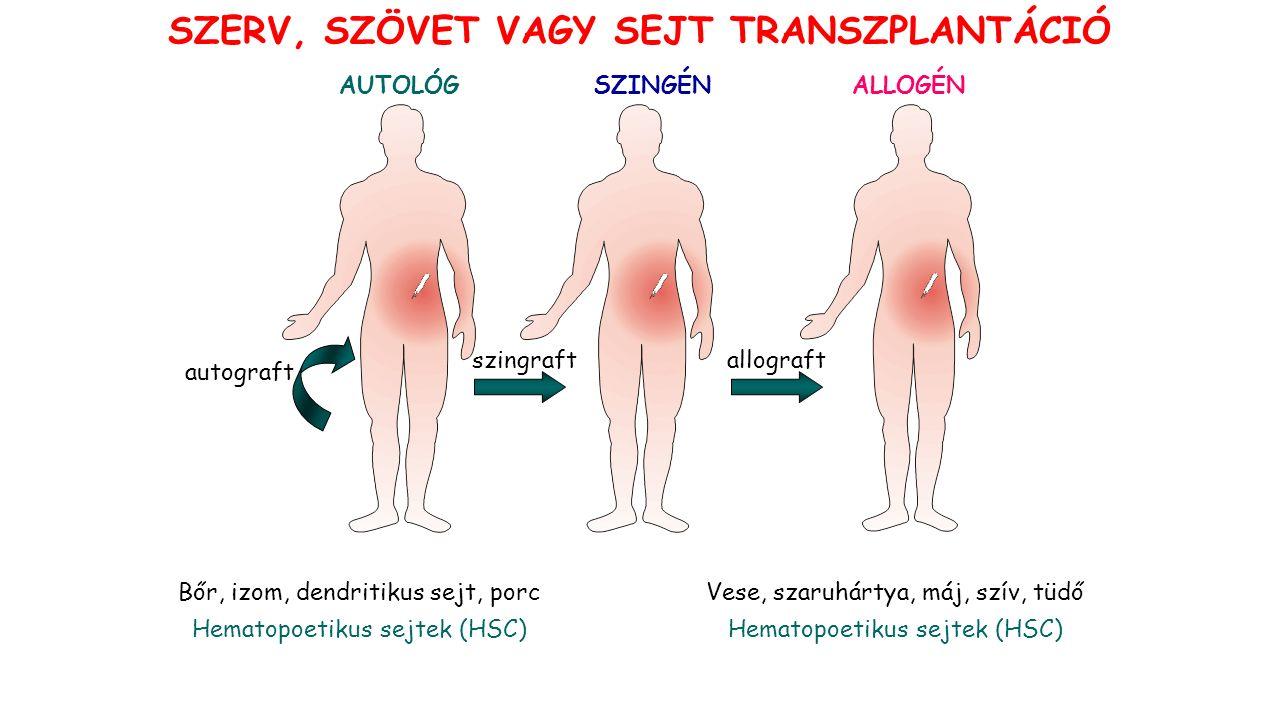 AUTOLÓG SZERV, SZÖVET VAGY SEJT TRANSZPLANTÁCIÓ Bőr, izom, dendritikus sejt, porc Hematopoetikus sejtek (HSC) autograft szingraft SZINGÉNALLOGÉN Vese, szaruhártya, máj, szív, tüdő Hematopoetikus sejtek (HSC) allograft