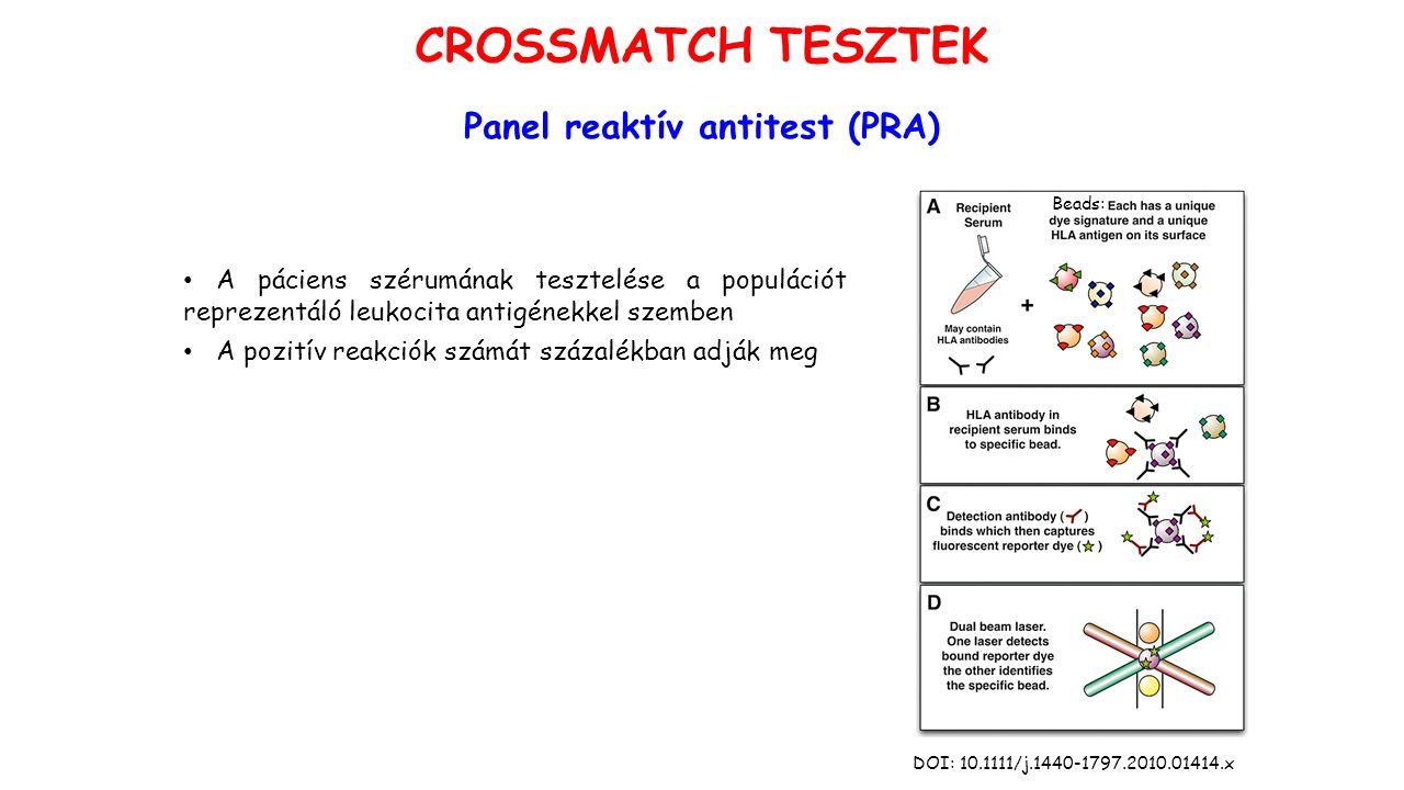 Panel reaktív antitest (PRA) A páciens szérumának tesztelése a populációt reprezentáló leukocita antigénekkel szemben A pozitív reakciók számát százalékban adják meg DOI: 10.1111/j.1440-1797.2010.01414.x Bb Beads: CROSSMATCH TESZTEK
