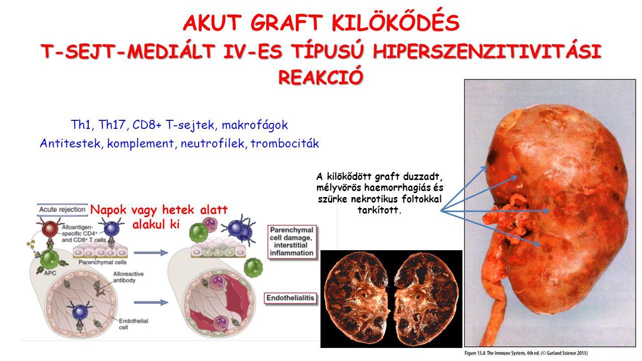 AKUT GRAFT KILÖKŐDÉS T-SEJT-MEDIÁLT IV-ES TÍPUSÚ HIPERSZENZITIVITÁSI REAKCIÓ Napok vagy hetek alatt alakul ki Th1, Th17, CD8+ T-sejtek, makrofágok Antitestek, komplement, neutrofilek, trombociták A kilökődött graft duzzadt, mélyvörös haemorrhagiás és szürke nekrotikus foltokkal tarkított.