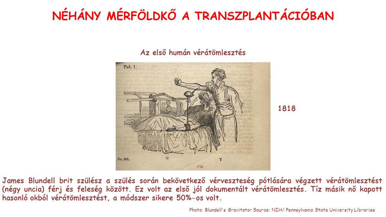 Az első humán vérátömlesztés 1818 NÉHÁNY MÉRFÖLDKŐ A TRANSZPLANTÁCIÓBAN James Blundell brit szülész a szülés során bekövetkező vérveszteség pótlására végzett vérátömlesztést (négy uncia) férj és feleség között.